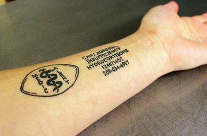 Tattoo artist finds market for medicalert tattoos for Tattoo addiction albany ga