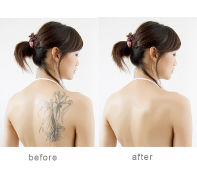 How to Cover up a Tattoo With