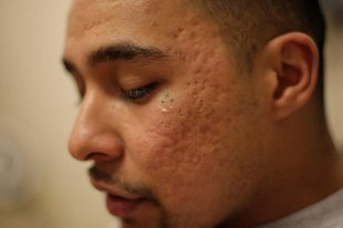 Exgang members get help erasing former lives tattoomagz for 2 dot tattoo meaning