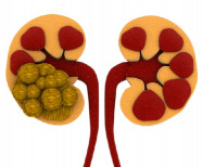 How to get rid of kidney stones permanently?