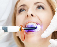 Teeth Whitening – Available Options and Safe Usage