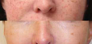 How to Remove Pigmentation From Face Permanently at Home?