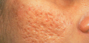 How to Remove Pimple Marks Naturally At Home?