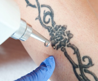 5 Things To Consider Before Getting A Tattoo Removal Service