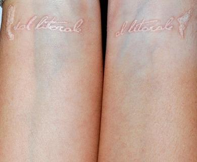 Healed White Ink Tattoo