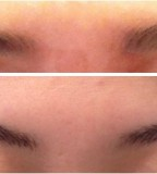 Painless 3D Eyebrow Tattoo for Ladies