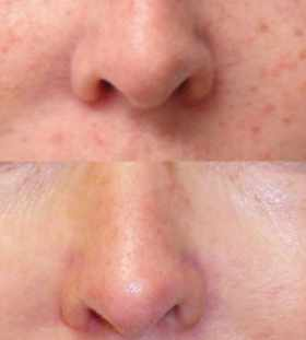 how to remove pigmentation from face permanently at home