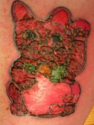Thenewtattoosubculture Tattoo Risks