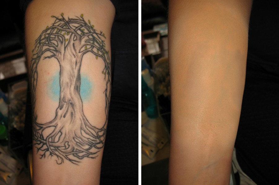 Before And After Inner Arm Tattoo Ideas