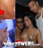 Kenyon Martin Removes Tattoo Lips From Neck
