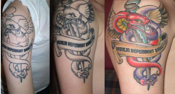Alert Medical Tattoos For Your Health