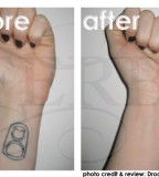 Tattoo Covering Makeup Before And After